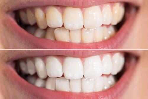 Tooth Whitening Faq Teeth Whitening In Buffalo Ny Free
